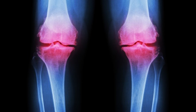 The risk of developing hand, hip, and knee osteoarthritis is increased in people who are overweight or obese.