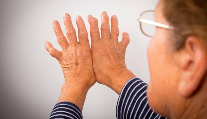 Shock Wave Therapy Treatment for Arthralgia in RA Patients