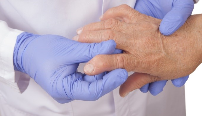 Elevated CRP Linked With CKD Risk in Rheumatoid Arthritis