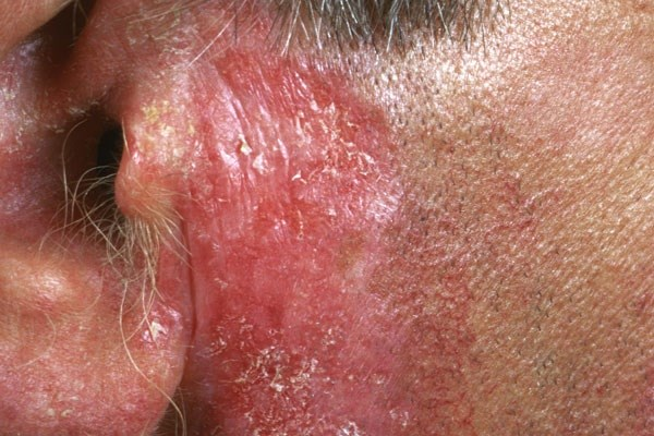 Drug-Induced Lupus Erythematosus: Clinical Presentation and Differential Diagnosis