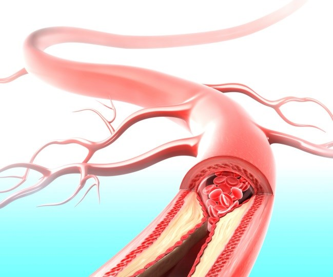 SLE Associated With Elevated Risk for Atherosclerosis