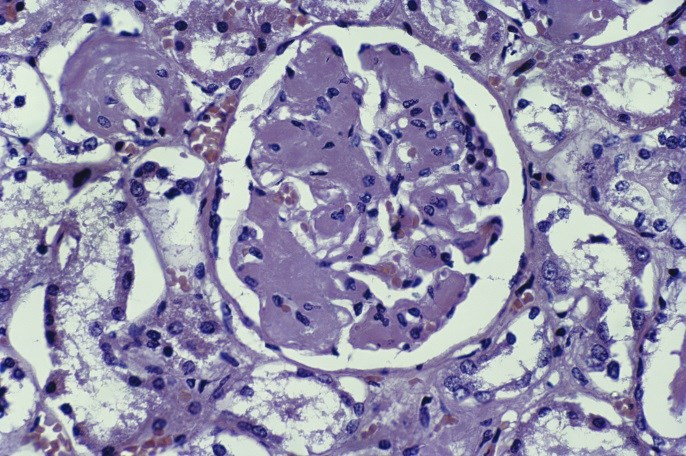 Case Study and Clinical Highlight: A Patient With Nephrotic Syndrome and Ankylosing Spondylitis