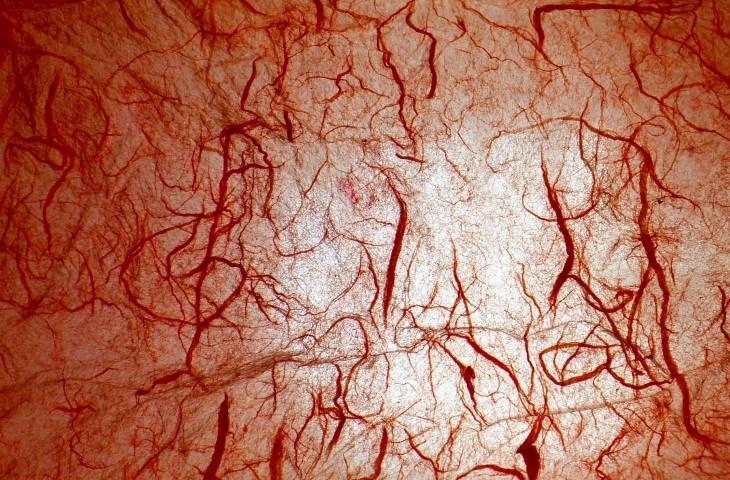 Role of Hypoxia in the Pathogenesis of Rheumatoid Arthritis