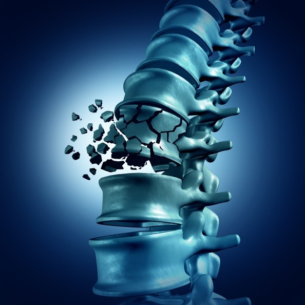 Osteoporotic Fractures, Diabetes Complications Similarly Affect QoL