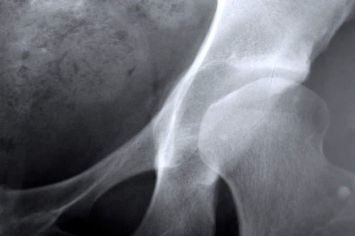 Summer levels of serum 25(OH)D appeared to be the strongest predictor of bone mineral density at the total hip.