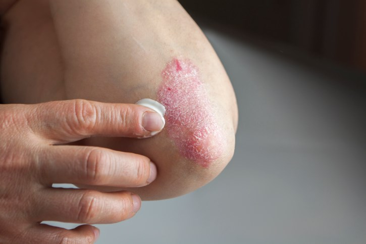 Women Have Lower Psoriasis Area and Severity Index Scores Than Men