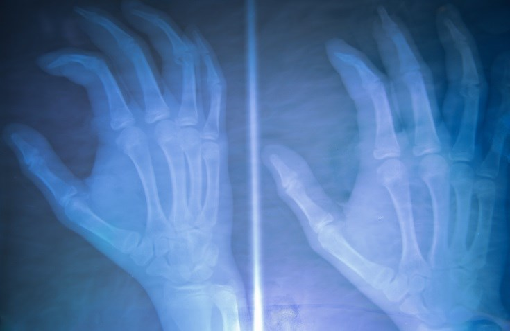Rheumatoid Arthritis, Systemic Sclerosis Patients Should Have Hand Function Evaluated
