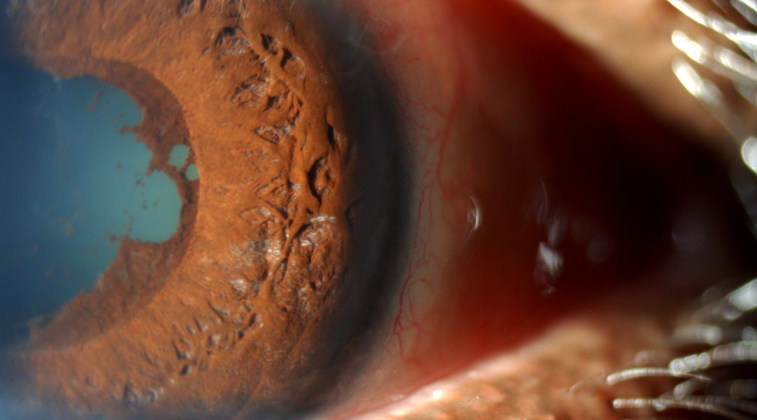 Multidisciplinary Partnerships in the Management of Uveitis in Patients With Rheumatic Disease