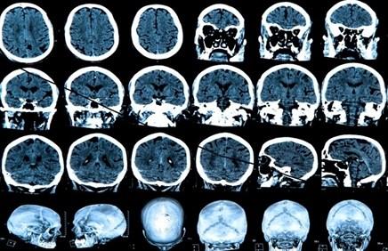 Neurodegenerative Disorders Often Misdiagnosed in the Context of Rheumatic Disease