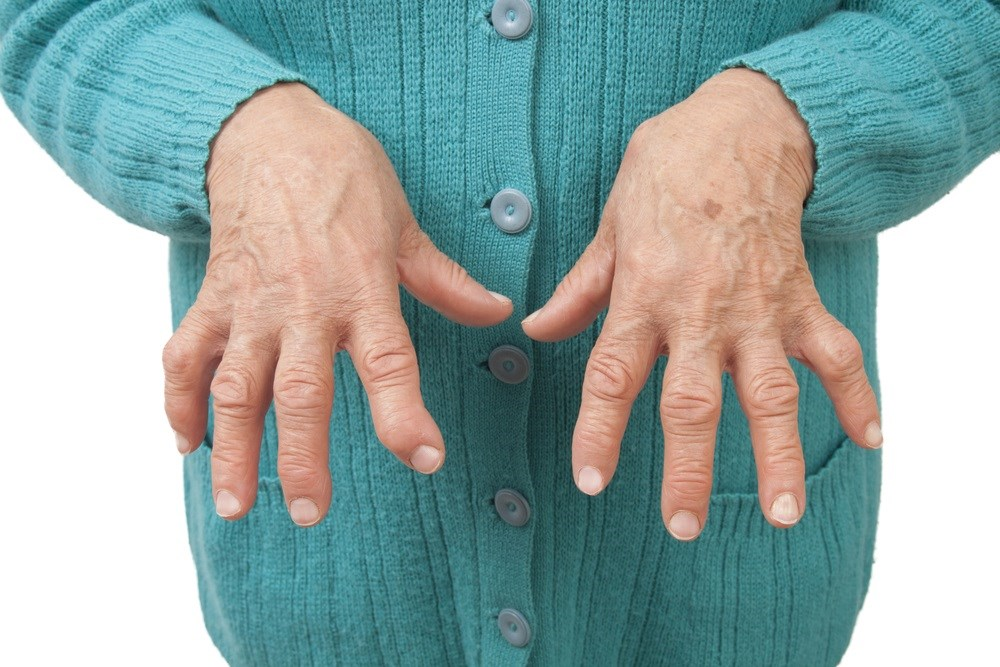 Is Low-Dose Methotrexate Sufficient in Patients With Rheumatoid Arthritis?