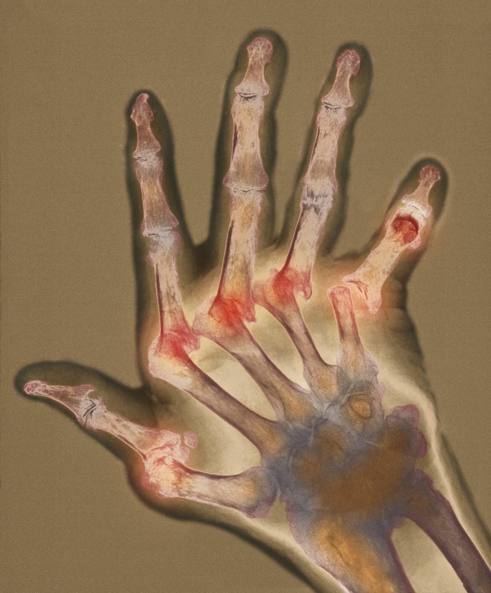 Secukinumab Improves Symptoms in TNFi-Refractory Rheumatoid Arthritis