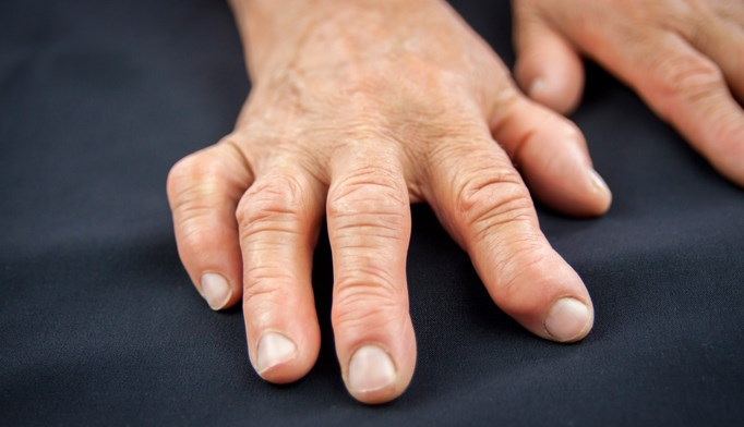 COBRA vs COBRA-Light for Rheumatoid Arthritis: Assessing Efficacy, Safety