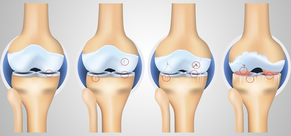 Metabolic Syndrome Not Associated With Incident Knee Osteoarthritis