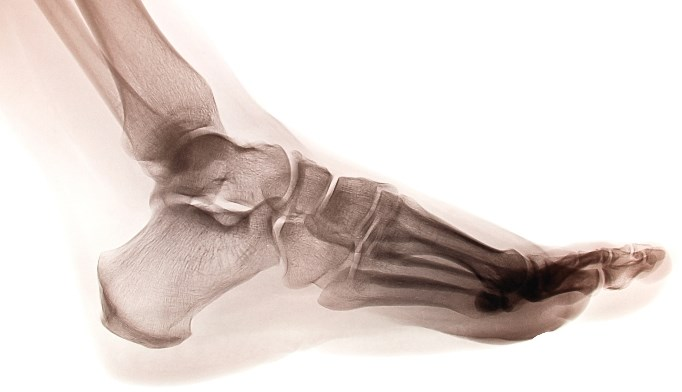 Ultrasound Finds Distinct Ankle Pathologies In Rheumatic Diseases