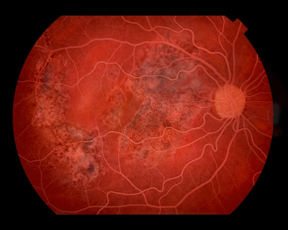 Tocilizumab Highly Effective in Refractory Juvenile Idiopathic Arthritis-associated Uveitis
