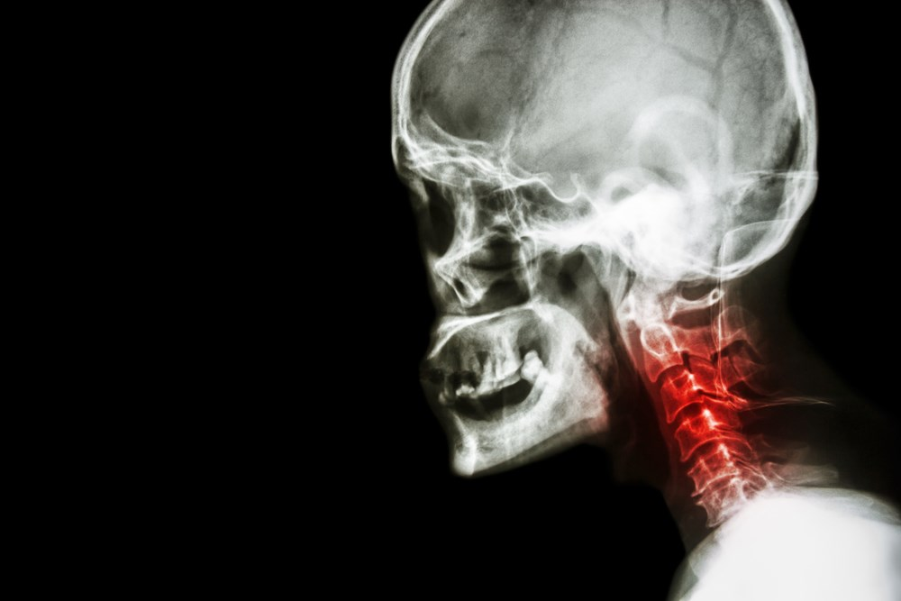 Cervical BME Correlates With Neck Pain in RA and AS