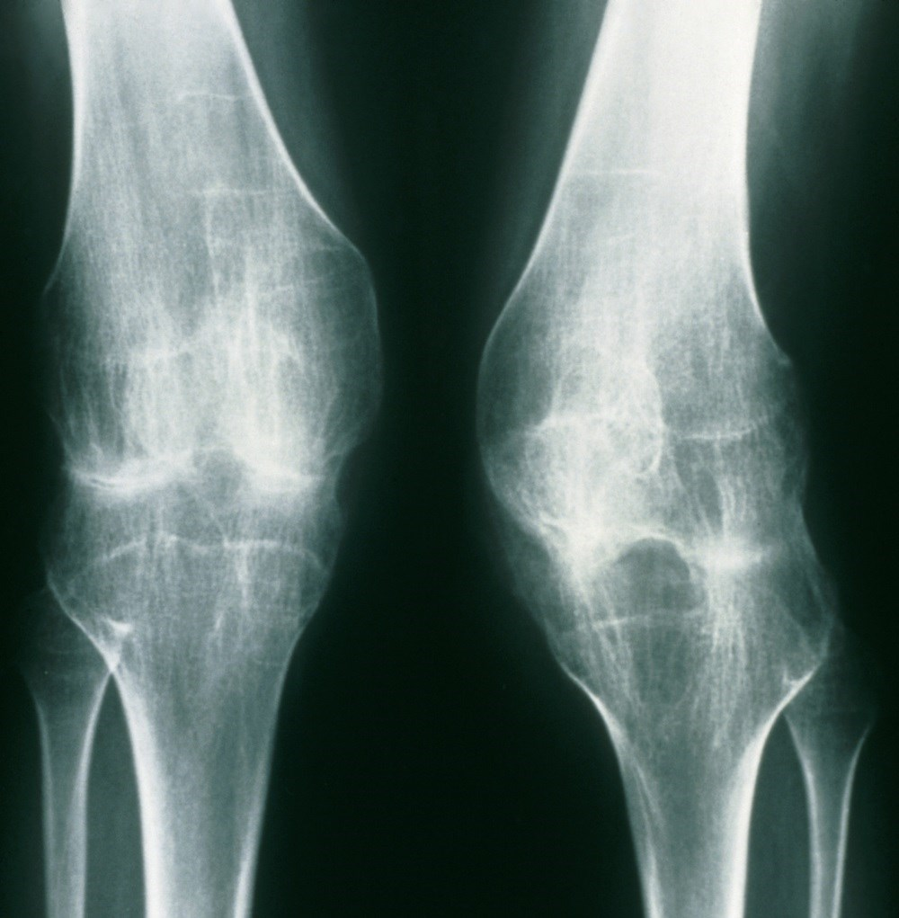 The effects of anti-TNF therapy and csDMARDs on several ERA-related outcomes were compared.