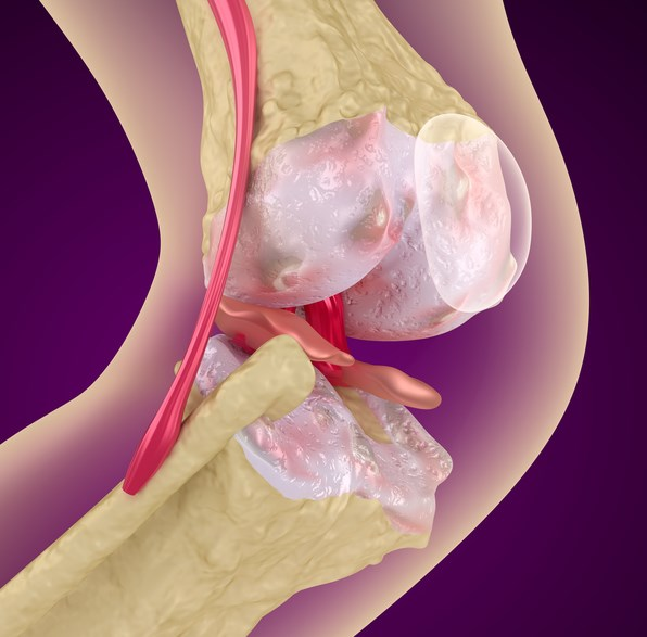 Glucosamine and Chondroitin Limit Cartilage Loss in Knee OA