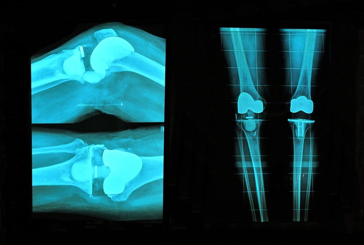 Is Weight Loss Necessary Before Total Knee or Hip Replacement Surgery?
