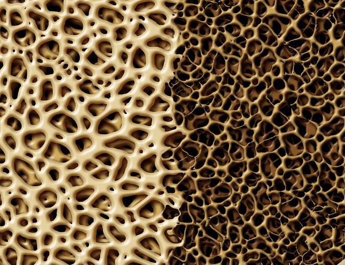 Treatment with testosterone for 1 year improved bone mineral density in older men.