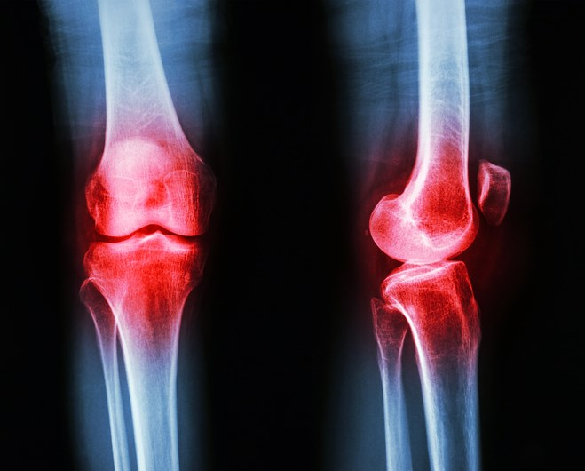 No Association Between Knee Osteoarthritis and Metabolic Syndrome