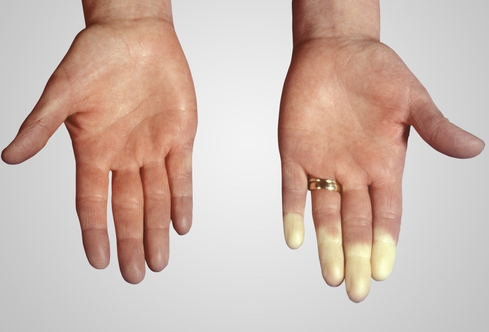 Raynaud Phenomenon: Revisiting a Cold Weather Problem