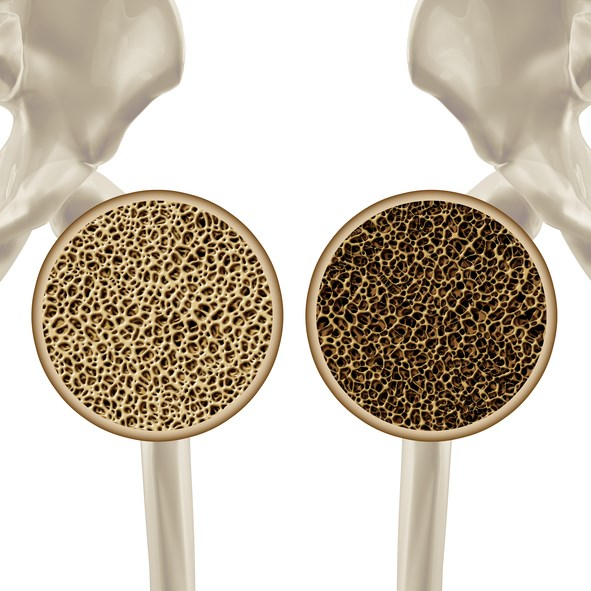 Bone Mineral Density Changes Related to Adrenal Incidentalomas in Menopause