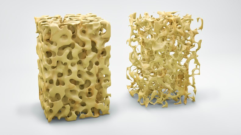 New Screening Method for Osteoporosis Therapy Adherence