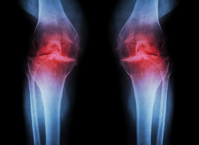 Data were collected from the Osteoarthritis Initiative to examine the relationship between knee osteoarthritis and hypertension.