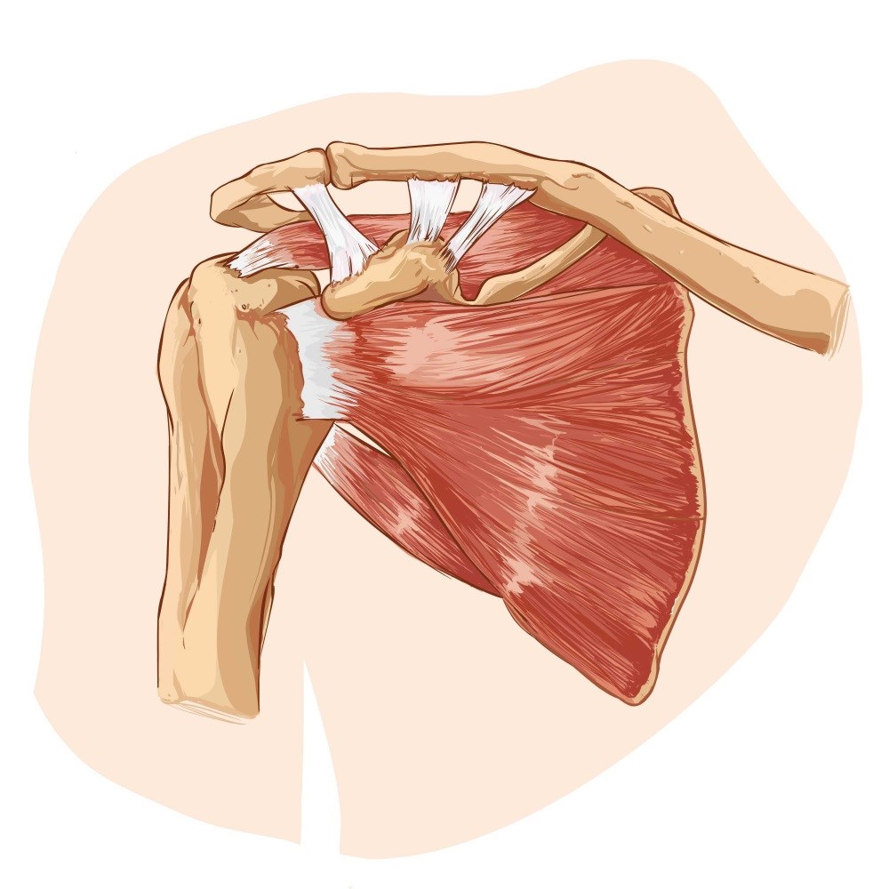 Addressing Cardiovascular Disease Risks May Prevent Shoulder Tendinitis