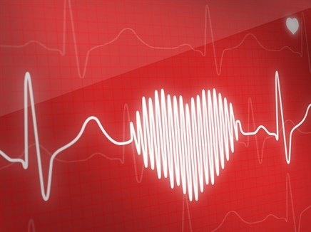 Improved Diagnosis of CVD in Patients With RA: Expert Insights