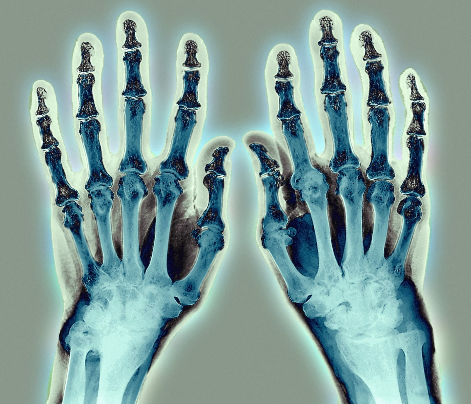 Rheumatoid Arthritis Flares Effectively Identified With OMERACT Tool
