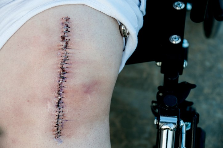 Inpatient Rehab After Total Knee Arthroplasty Proves Ineffective