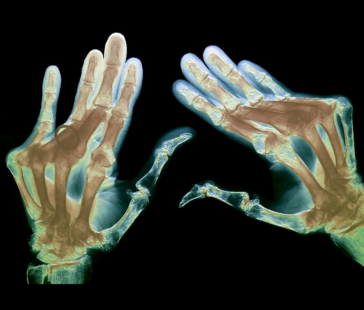 Colored X-ray of the hands of a 74 year old patient with severe rheumatoid arthritis in all of the fingers. <i>Image credit: Zephyr/Science Source.</i>