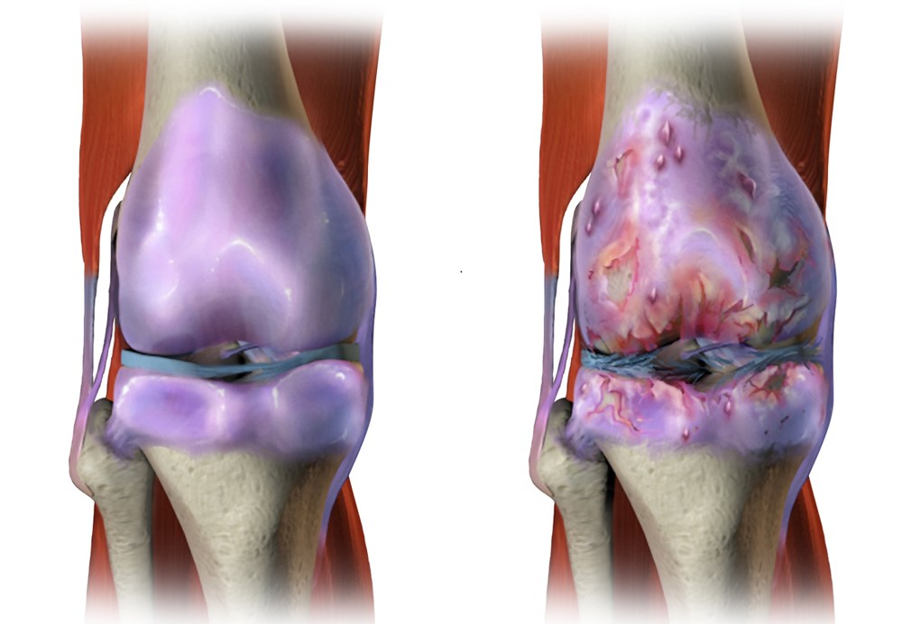 Knee Osteoarthritis in Early Rheumatoid Arthritis May Affect Disease Activity Evaluation