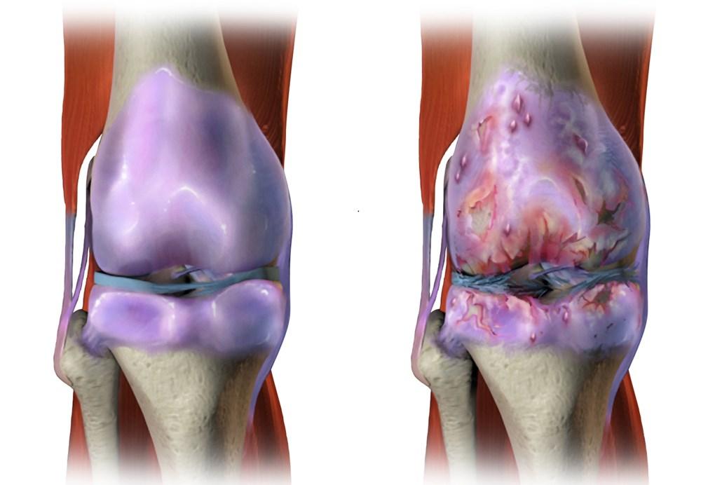 Knee Osteoarthritis in Early Rheumatoid Arthritis May Affect Disease Activity Evaluation