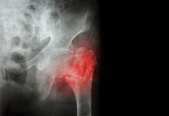 The study evaluated use of health services as part of osteoporosis assessment and treatment within 6 to 12 months after first hip fracture in women ≥50 years old.