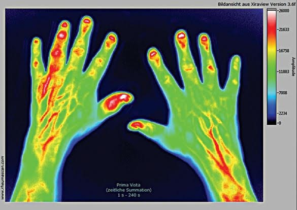 Measuring Disease Activity in Psoriatic Arthritis