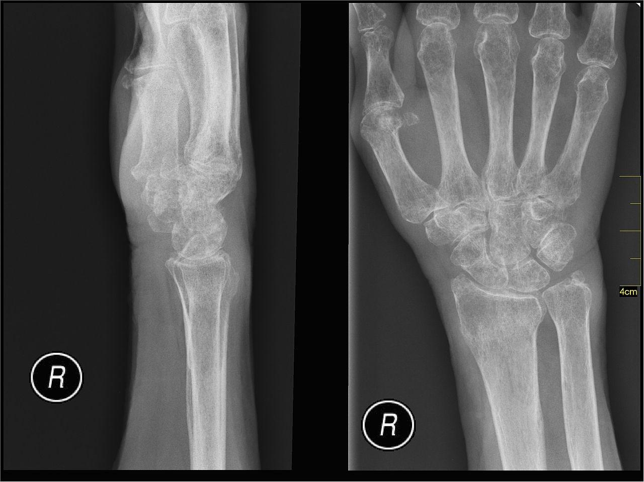 Postmenopause Osteoporosis Drug Denosumab Demonstrates Long-term Safety
