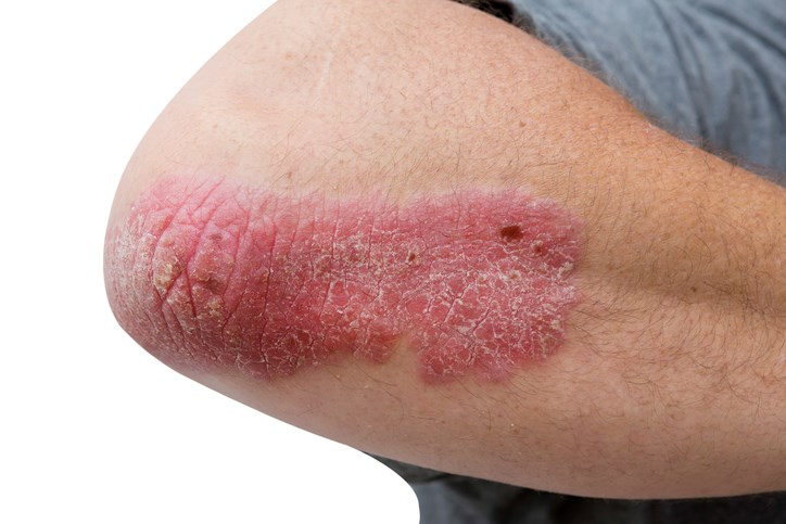 The study is being conducted in patients with moderate-to-severe chronic plaque psoriasis.