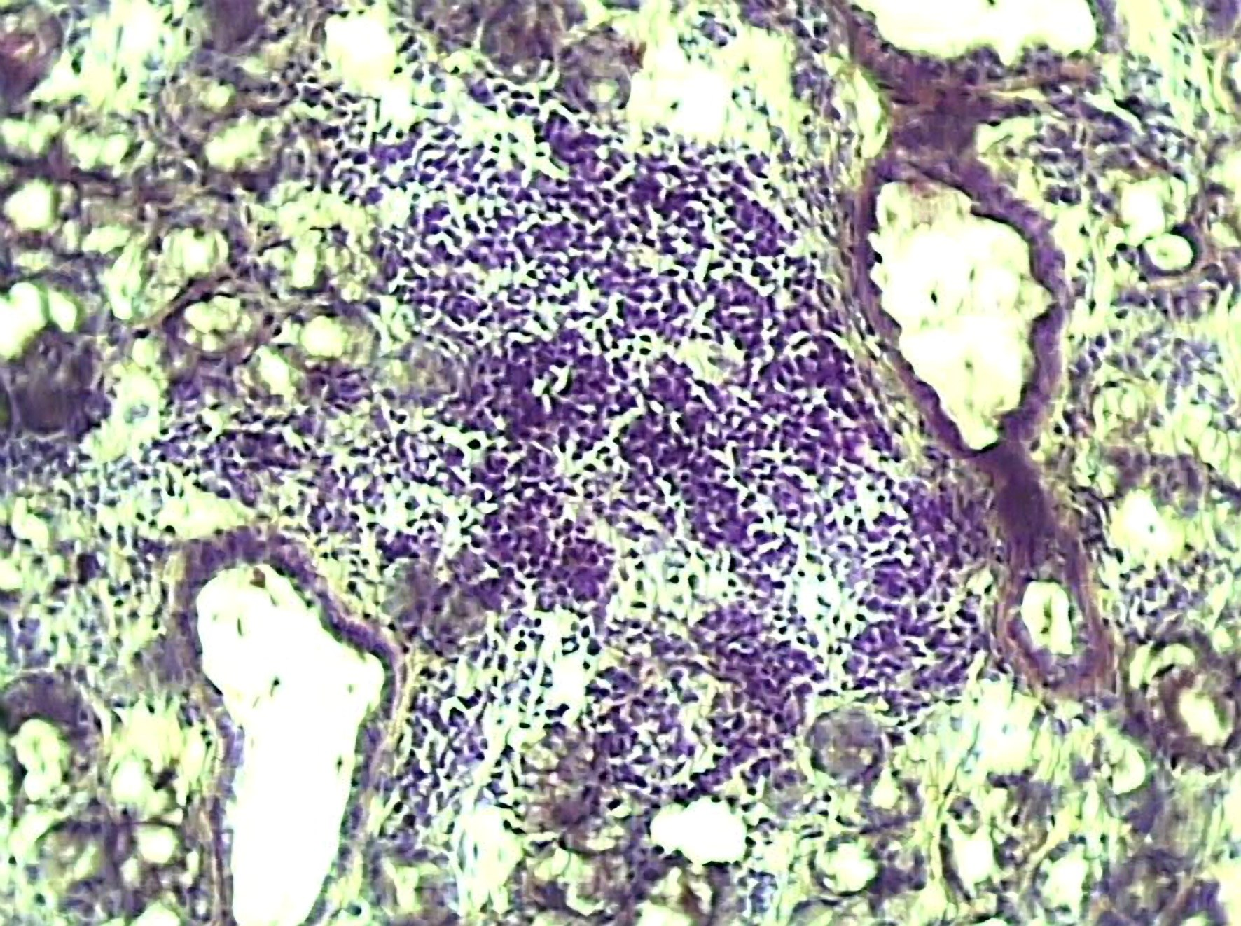 Photomicrograph of salivary gland of a person with Sjögren's syndrome, characterized by the abnormal migration of lymphocytes T and B (mauve). <i>Image credit: UEB IFR140/Science Source.</i>