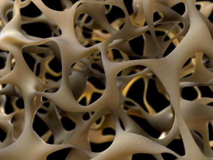 The study findings suggest that MS may be a secondary cause of osteoporosis.