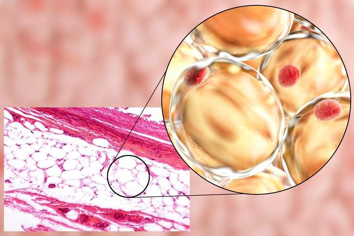 Rheumatoid Arthritis and Metabolic Syndrome: High Prevalence and Risk