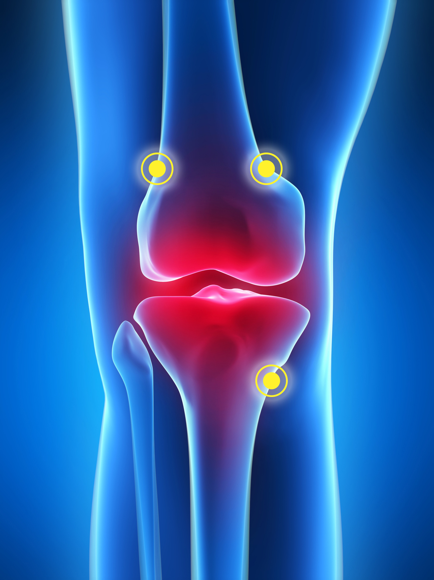 Fda Clears Radiofrequency Treatment For Osteoarthritis