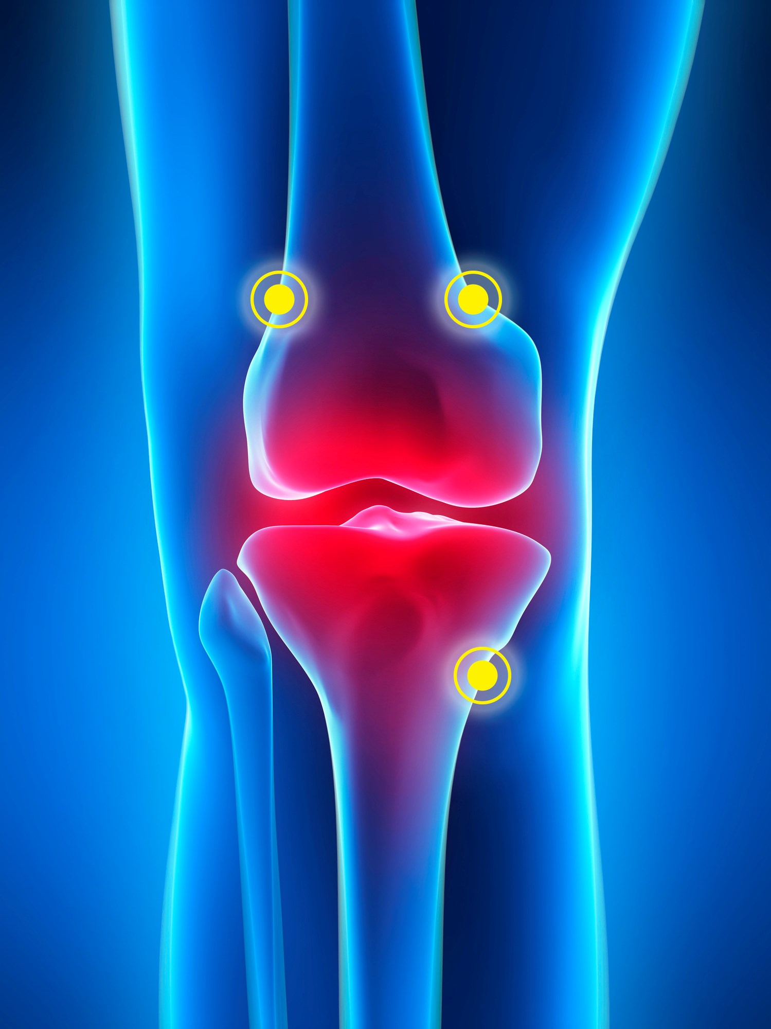 FDA Clears Radiofrequency Treatment for Osteoarthritis Knee Pain