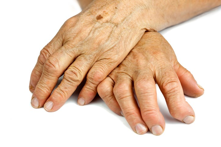 Low Disease Activity After Tofacitinib Discontinuation in Rheumatoid Arthritis