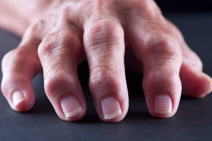 Long-term type 1 diabetes not associated with hand osteoarthritis