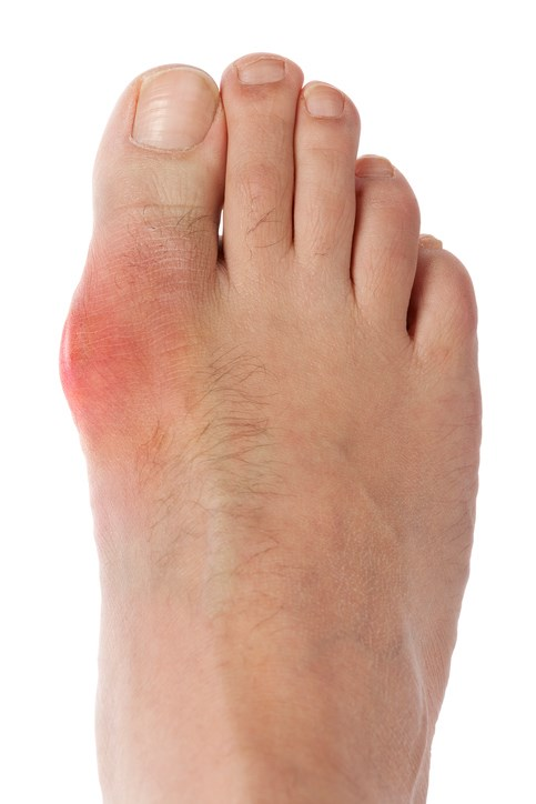 DASH Diet May Help Lower Occurrence of Gout