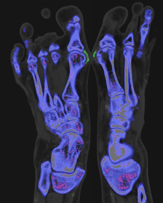 Gout can cause inflammatory arthritis via monosodium urate crystal formation in the joints and tissues, resulting in severe joint pain, swelling, and redness.