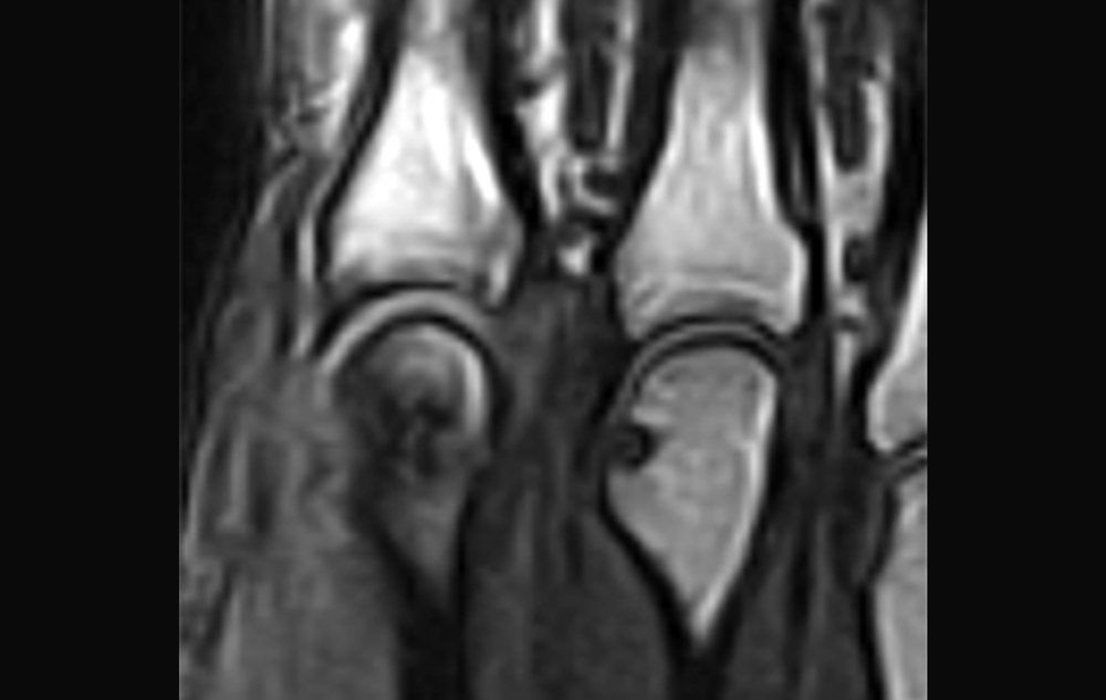 Researchers say that MRI of the hand and foot can be used in the early diagnostic process of RA in patients with UA. Photo credit: Steven Needell / Science Source